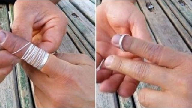 [FULL] How To Remove Ring Stuck On Finger | Ring Jammed On Finger Removed Using Piece Of String